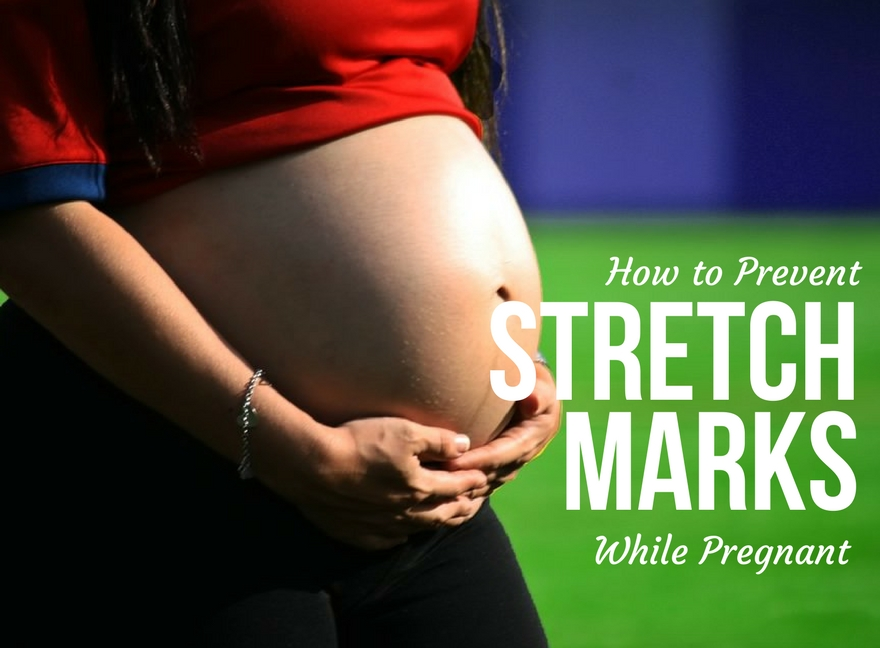 How to Prevent Stretch Marks While Pregnant