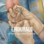 Epidurals: 6 Things You Need To Know
