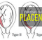 symptoms-causes-and-treatment-of-placenta-previa