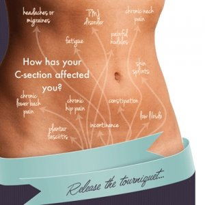 CSection Recovery Natural Tips for Healing HEALTH C section