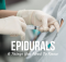 epidurals - 6 things you need to know